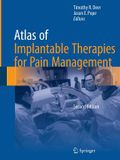 Atlas of Implantable Therapies for Pain Management