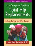 Your Comp GT Total Hip Replace: Before, During, and After Surgery