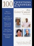 100 Q&as about Liver Cancer 3e