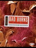 Bad Burns: True Survival Stories (Powerful Medicine)