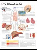 The Effects of Alcohol Chart: Wall Chart