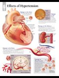 Effects of Hypertension Chart: Wall Chart