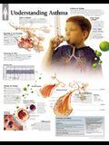 Understanding Asthma Chart: Wall Chart