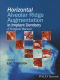 Horizontal Alveolar Ridge Augmentation in Implant Dentistry: A Surgical Manual