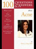 100 Questions & Answers about Acne