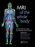 MRI of the Whole Body: An Illustrated Guide to Common Pathologies