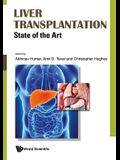 Liver Transplantation: State of the Art