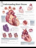Understanding Heart Disease Chart: Laminated Wall Chart