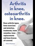 Arthritis in knee, osteoarthritis in knee. Knee arthritis types, knee exercises and stretches, treatments, home remedies, knee replacements and knee b