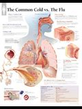 The Common Cold Vs Flu Chart: Laminated Wall Chart
