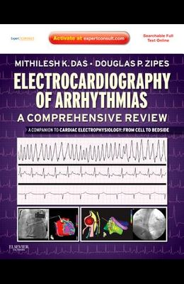 Electrocardiography of Arrhythmias: A Comprehensive Review: A Companion to Cardiac Electrophysiology