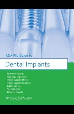 ADA Flip Guide to Dental Implants