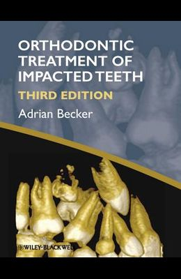 Orthodontic Treatment of Impac