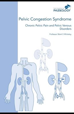 Pelvic Congestion Syndrome - Chronic Pelvic Pain and Pelvic Venous Disorders